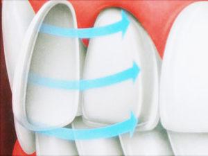 porcelain-veneers-graphic